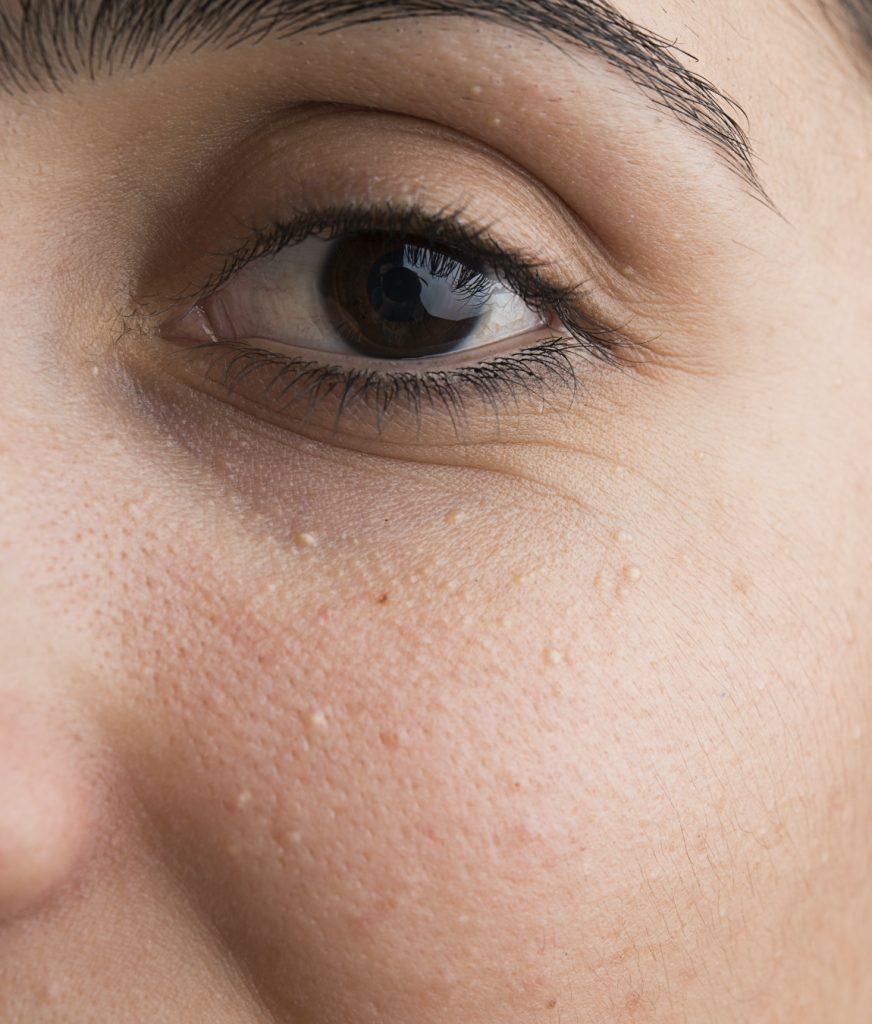Skin bumps around a woman's eye